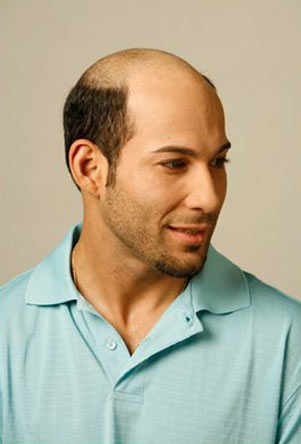 going bald from stress how to stop it