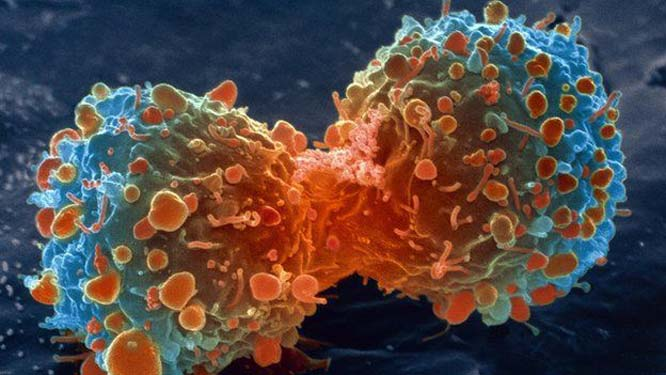 FDA approves breakthrough treatment for dire cancers